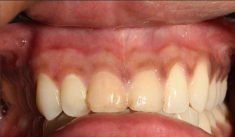 Laser depigmentation postop