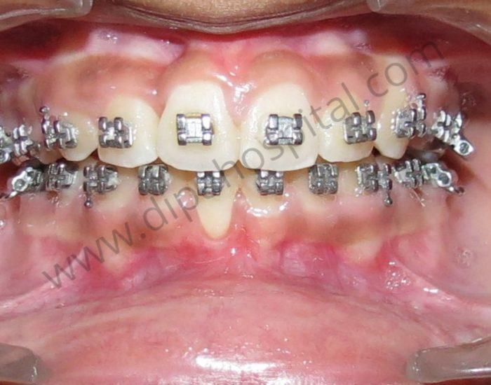 Orthodontic metal braces (1)