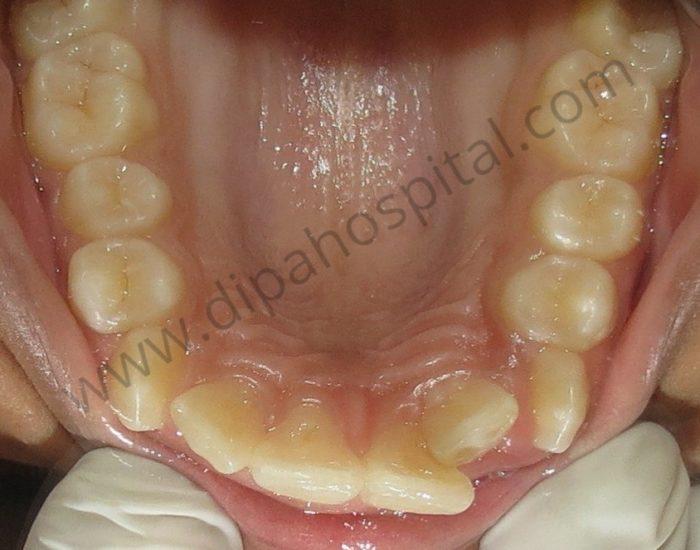 Orthodontic metal braces (2)