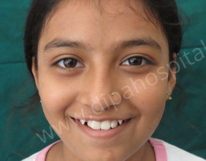 Orthodontic metal braces (4)