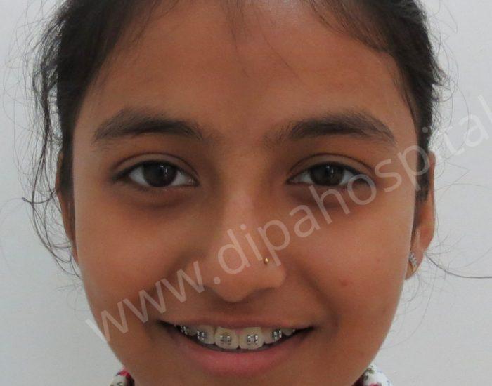Orthodontic metal braces (5)
