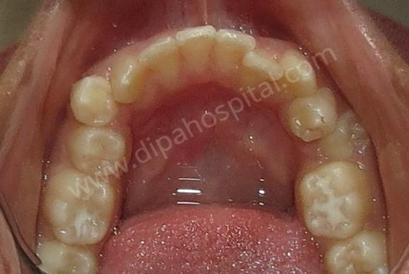 Orthodontic metal braces (6)