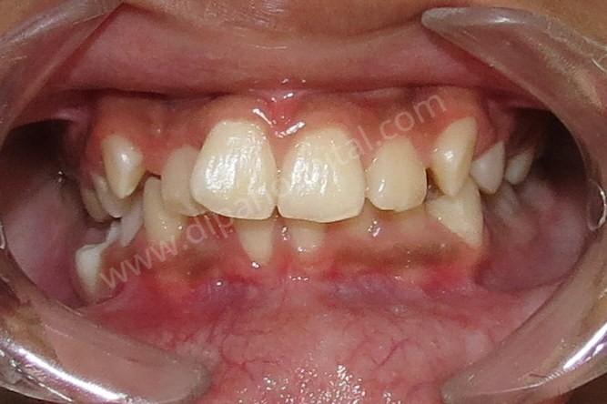 Orthodontic metal braces (8)