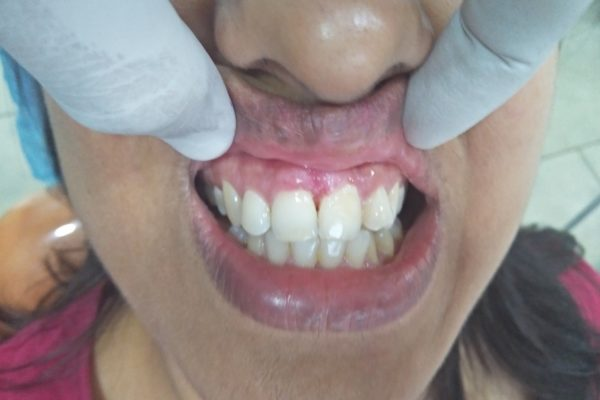 Ossifying fibroma with secondary inflammatory enlargement 2
