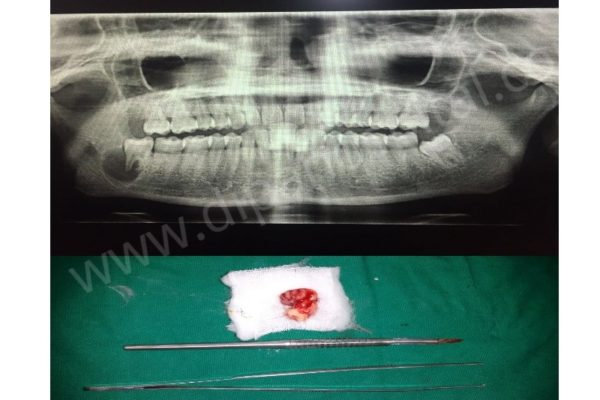 Radicular cyst in relation to impacted wisdom tooth