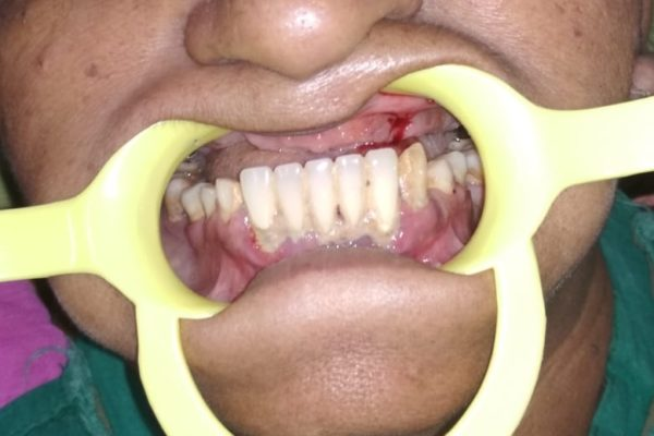 Teeth in 72 hours 2